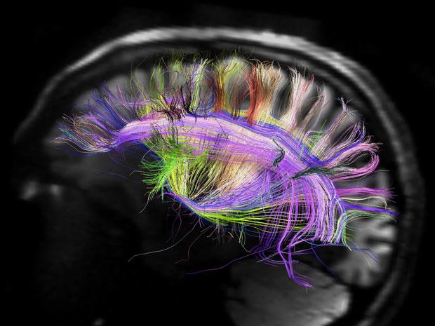 Cérebro visto como uma grade curvada, em imagem feira por estudo publicado nesta quinta (29) (Foto: MCH-UCLA Human Connectome Project)