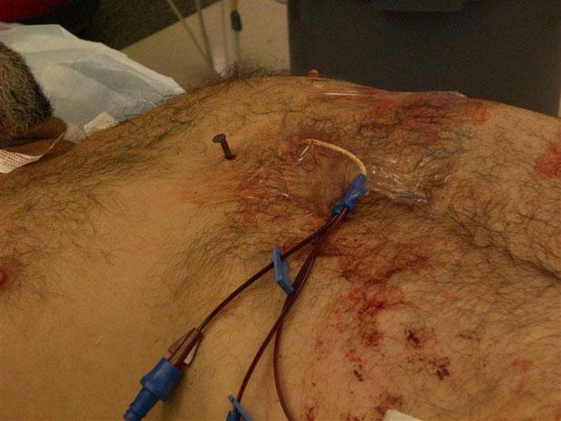 Prego é visto no peito de Dennis Hennis antes de ser retirado por uma cirurgia (Foto: Reuters/Cooper University Hospital)