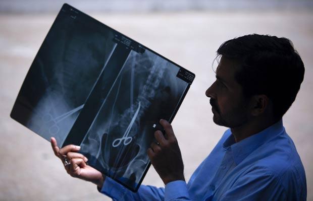 Safdar Ali Shah, de 36 anos, exibe raio-X que mostra tesoura em seu corpo. (Foto: Akhtar Soomro/Reuters)