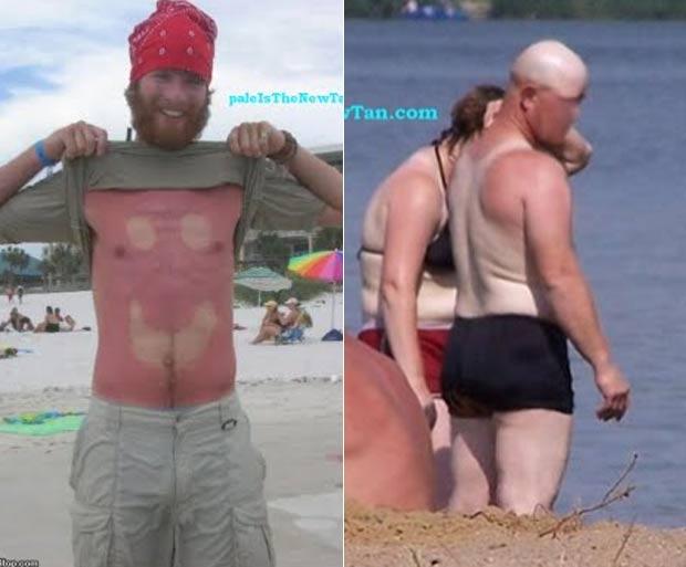 Site reúne fotos constrangedoras de 'pessoas bronzeadas'. (Foto: Reprodução)