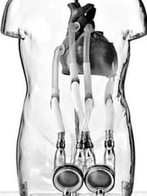 Coração artificial fica acoplado a um dispositivo fora do corpo (Foto: Great Ormond Street Hospital/BBC)