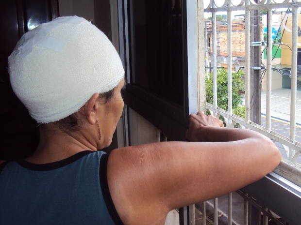 Vítima de Escalpelamento ainda se recuperando do acindente espera futuro melhor (Foto: Glauce Monteiro)