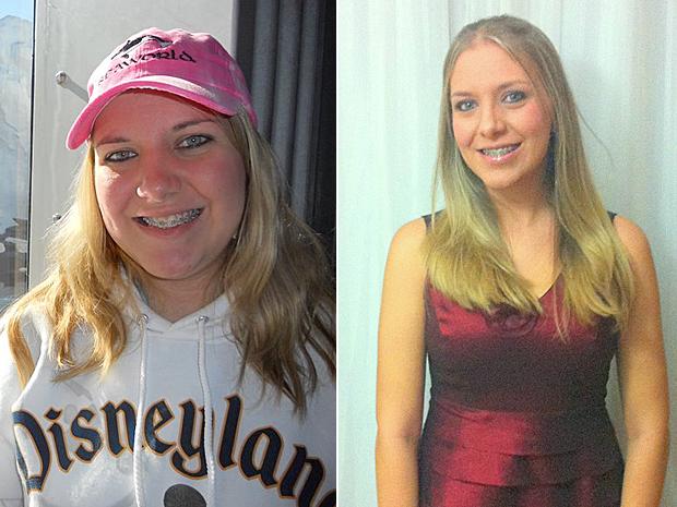 Ariane antes e depois (Foto: Arquivo pessoal)