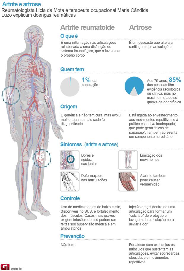 Diferença entre artrose e artrite