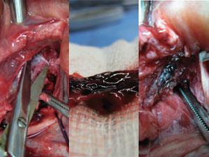 Estrutura azulada retirada da região genital seria o mítico 'ponto G' para médico americano (Foto: Divulgação)