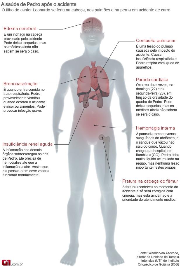 Info quadro clínico cantor Pedro (Foto: arte/G1)