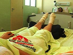 Bailarinos sofrem queimaduras após apresentação em praça na Paraíba (Foto: Reprodução/TV Paraíba)