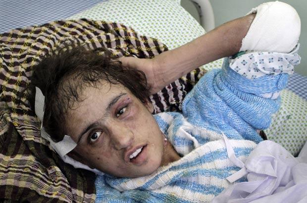 Sahar Gul tinha sido vendida pelo irmão por US$ 5 mil. (Foto: Musadeq Sadeq/AP)