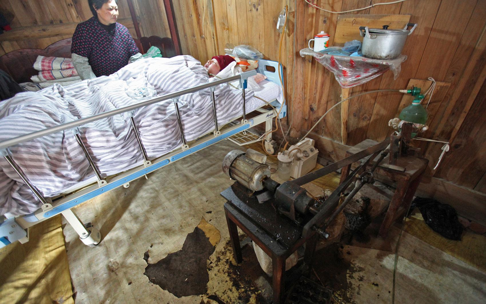 O chinês Fu Xuepeng sobrevive há 7 anos devido à ajuda dos pais, que passaram a maior parte desse período se revezando para bombear oxigênio para os pulmões de Fu. Ele ficou paralisado num acidente de carro em 2006 e agora vai receber ajuda profissional.