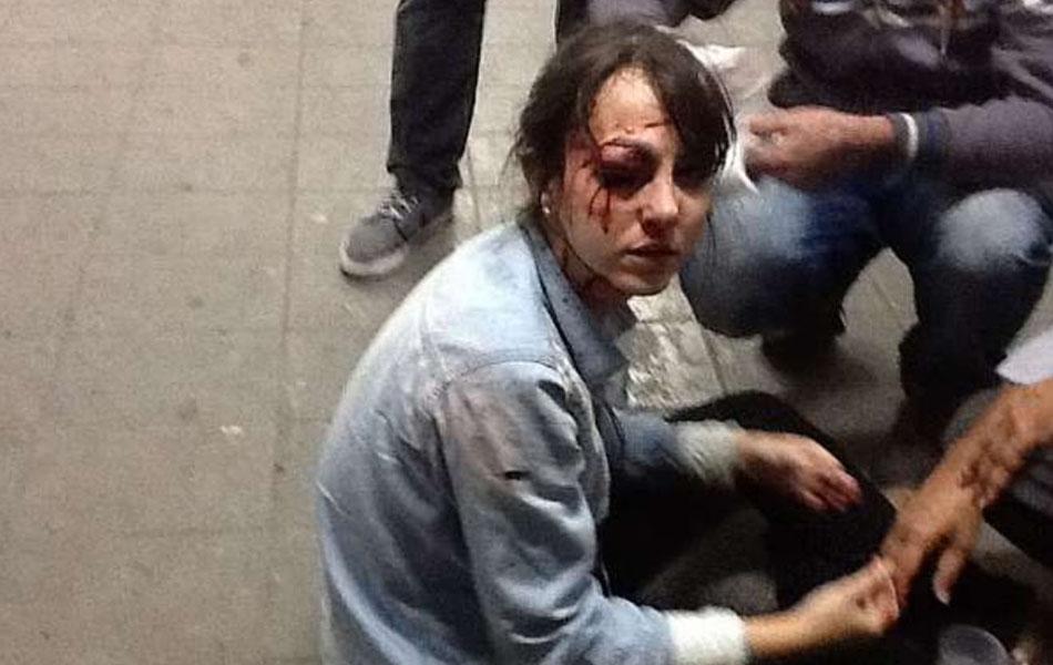 O jornal 'Folha de S.Paulo' diz que teve 7 repórteres atingidos no protesto. Entre eles, Giuliana Vallone (foto) e Fábio Braga levaram tiros de bala de borracha nos rostos, de acordo com a publicação.