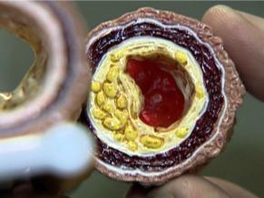 Globo Universidade Ciências Moleculares (Foto: Reprodução Tv)