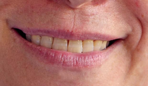 Clareamento De Dentes No Photoshop Elements 9 Dicas E Tutoriais