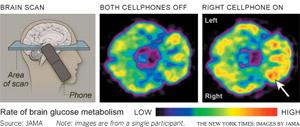 Taxa do metabolismo de glucose do cérebro (Foto: Reprodução: NY Times/Jama)