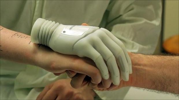 Mão biônica que será implantada (Foto: BBC)