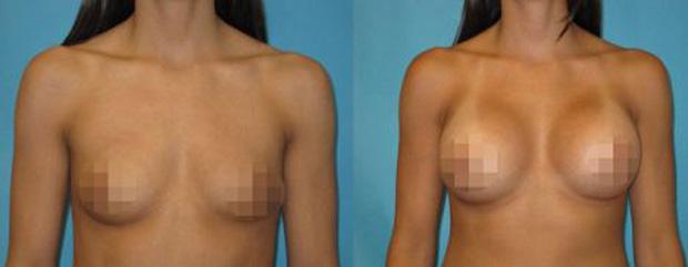 Pacientes tiveram as fotos divulgadas ao lado de seus nomes (Foto: Reprodução)