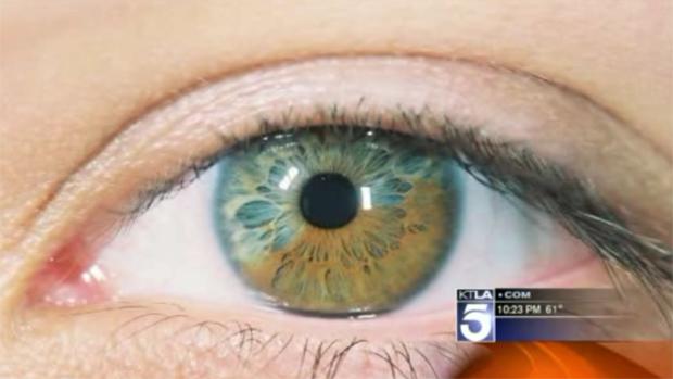 Olhos (Foto: Reprodução/KTLA)