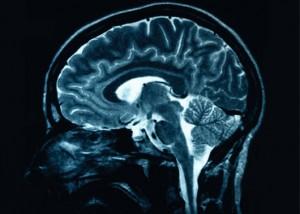 Gamers desenvolvem de forma diferente a massa cinzenta do cérebro (Foto: Reason.com)
