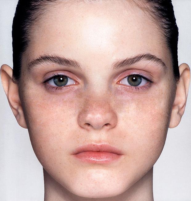 Resultado 'Band Aid', que faz desaparecer manchas na pele (Foto: Reprodução/Isabela Catão)