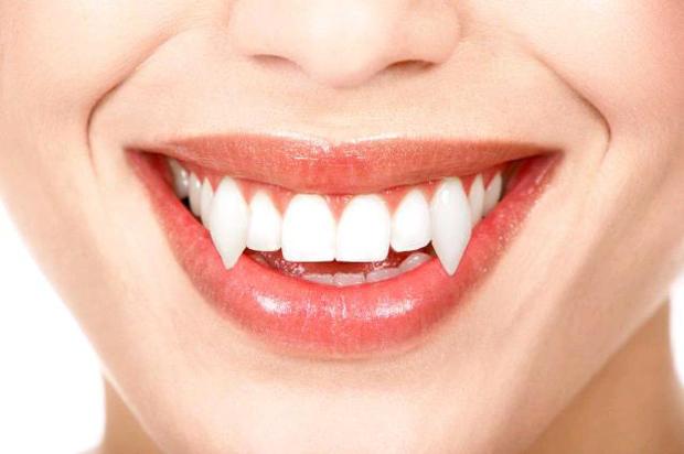 Resultado como a ferramenta do Photoshop cria dentes de vampiros em fotos (Foto: Reprodução/Isabela Catão)