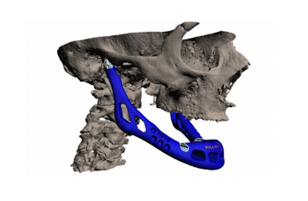 jaw-3d