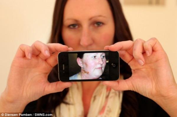 Jenny Taylor exibe no iPhone foto de como ficou por conta da alergia (Foto: Reprodução)