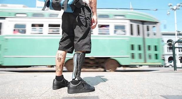 Prótese de perna customizada em 3D produz melhores resultados aos pacientes (Foto: Reprodução)