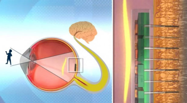 Bio Retina pode significar uma nova vida para quem perdeu a visão (Foto: Reprodução)