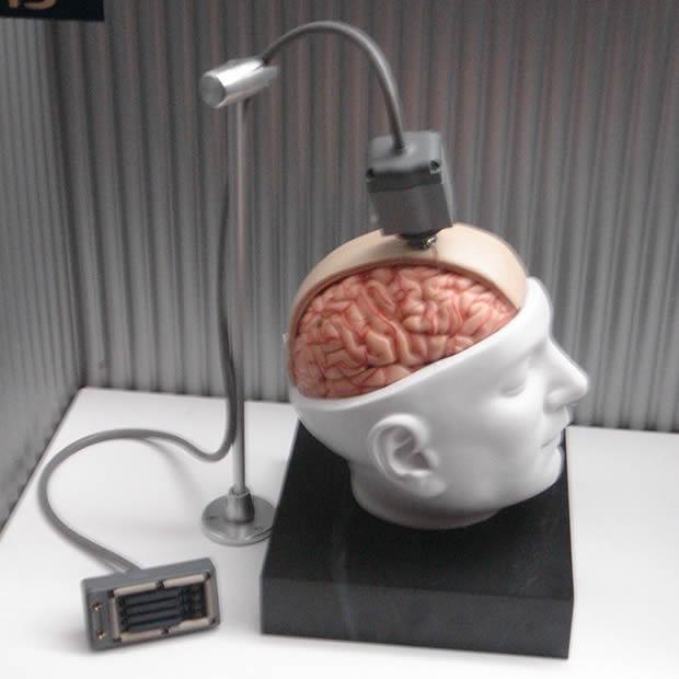 Ilustração do projeto de um implante cerebral chamado BrainGate (Foto: Reprodução / Wikipédia)