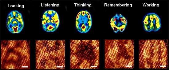 Exame de ressonância magnética usado para detectar atividade cerebral em diversas tarefas (Foto: Reprodução / Inovação Tecnológica)