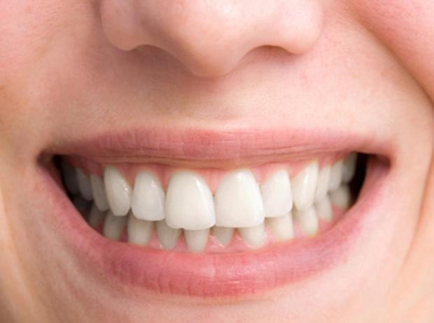 Aprenda A Clarear Dentes No Gimp De Forma Simples Dicas E