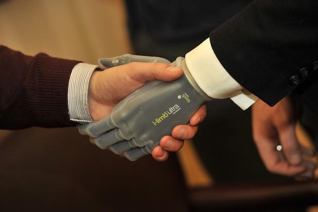 Mão artificial está cada vez mais desenvolvida (Foto: Reprodução Engadget)