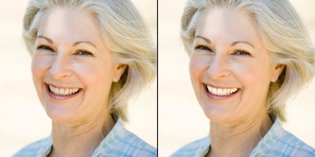 Antes e depois do clareamento de dentes feito no Photoscape (Foto: Reprodução/Raquel Freire)