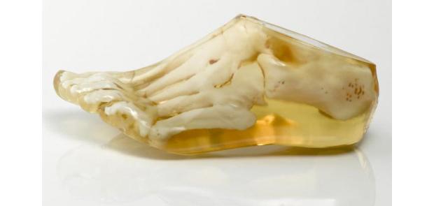 A medicina deverá se beneficiar da impressão 3D principalmente com próteses de alta precisão (Foto: Reprodução / Hongkiat)