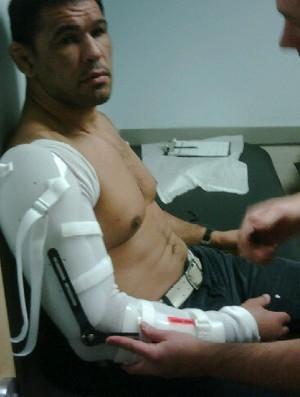 Rodrigo Minotauro coloca nova tala (Foto: Reprodução/Twitter)