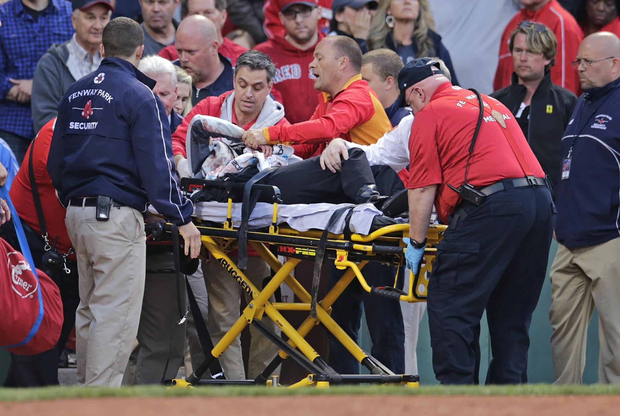 05d8a5b313 Mulher atingida por taco de beisebol está se recuperando
