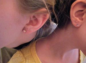 Zumbido por ruído pode ocorrer por lesão na cóclea