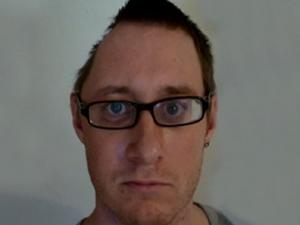 O britânico Tim Barter, antes da passar pela cirurgia para reconstruir seu crânio. (Foto: BBC)