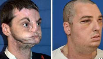 Homem se submeteu ao mais extenso transplante facial  (Foto: AFP)